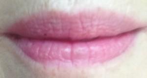 Hare-lips-natural-light