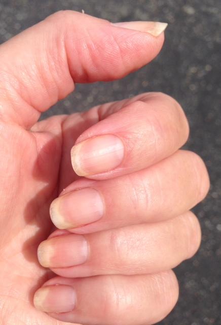 unpolished-nails