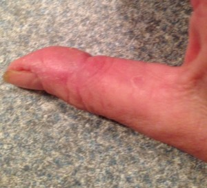 exfoliative keratolysis on thumb