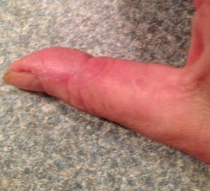 exfoliative keratolysis on thumb
