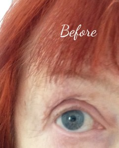 eye-before