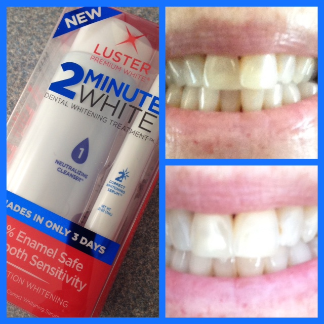 Luster 2 Minute White teeth whitening kit & my before & after photos neversaydiebeauty.com @redAllison