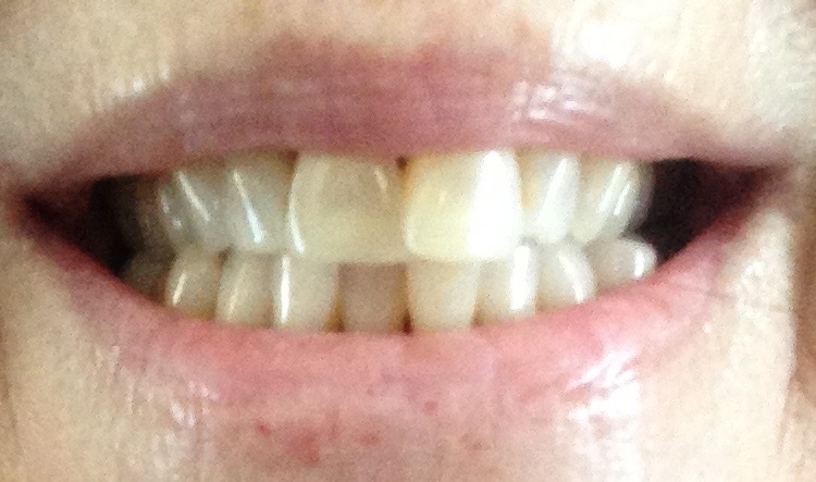 teeth before using Luster 2 Minute White dental whitening treatment kit neversaydiebeauty.com