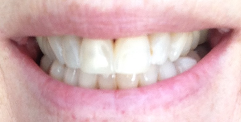 teeth after using Luster 2 Minute White Dental Treatment kit for about a week neversaydiebeauty.com