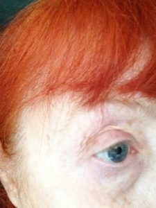 eye after using Instant Eyelift neversaydiebeauty.com