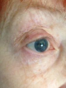 eye before Instant Eyelift neversaydiebeauty.com