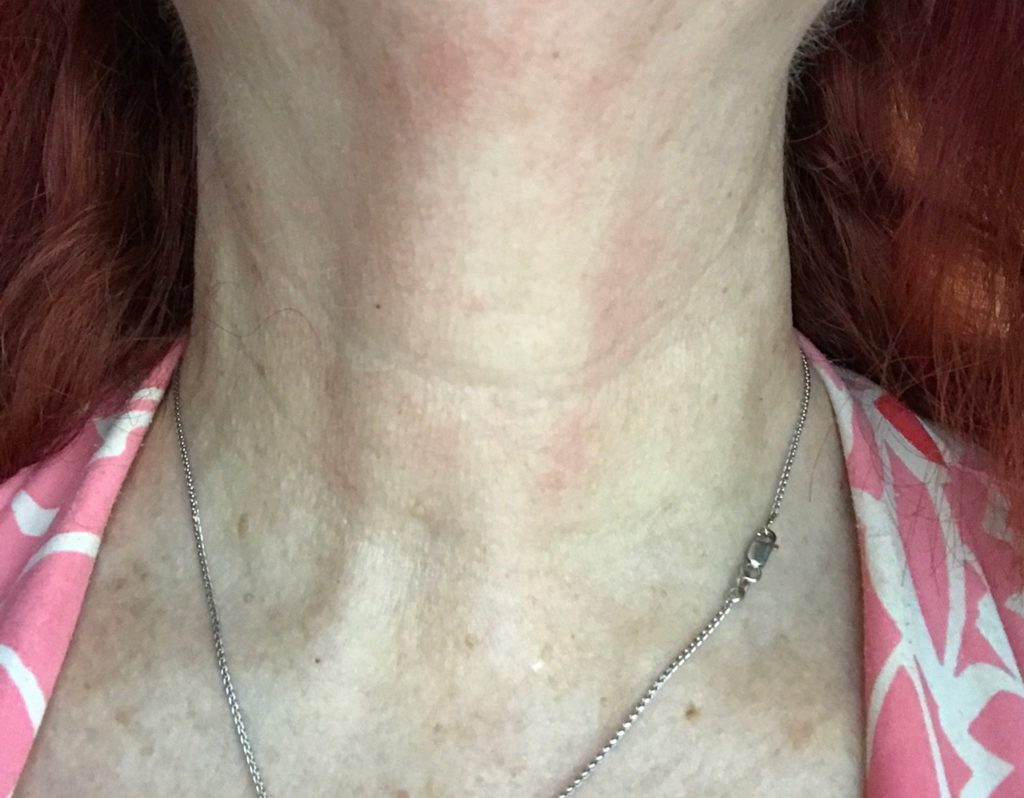 my neck wearing StriVectin Tightening Neck Serum Roller and TL Advanced Tightening Light Neck Cream, neversaydiebeauty.com