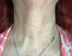 my neck wearing StriVectin Tightening Neck Serum Roller and TL Advanced Tightening Light Neck Cream, neversaydiebeauty.com