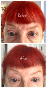 Incredible By Nature Eye Gel before & after, neversaydiebeauty.com