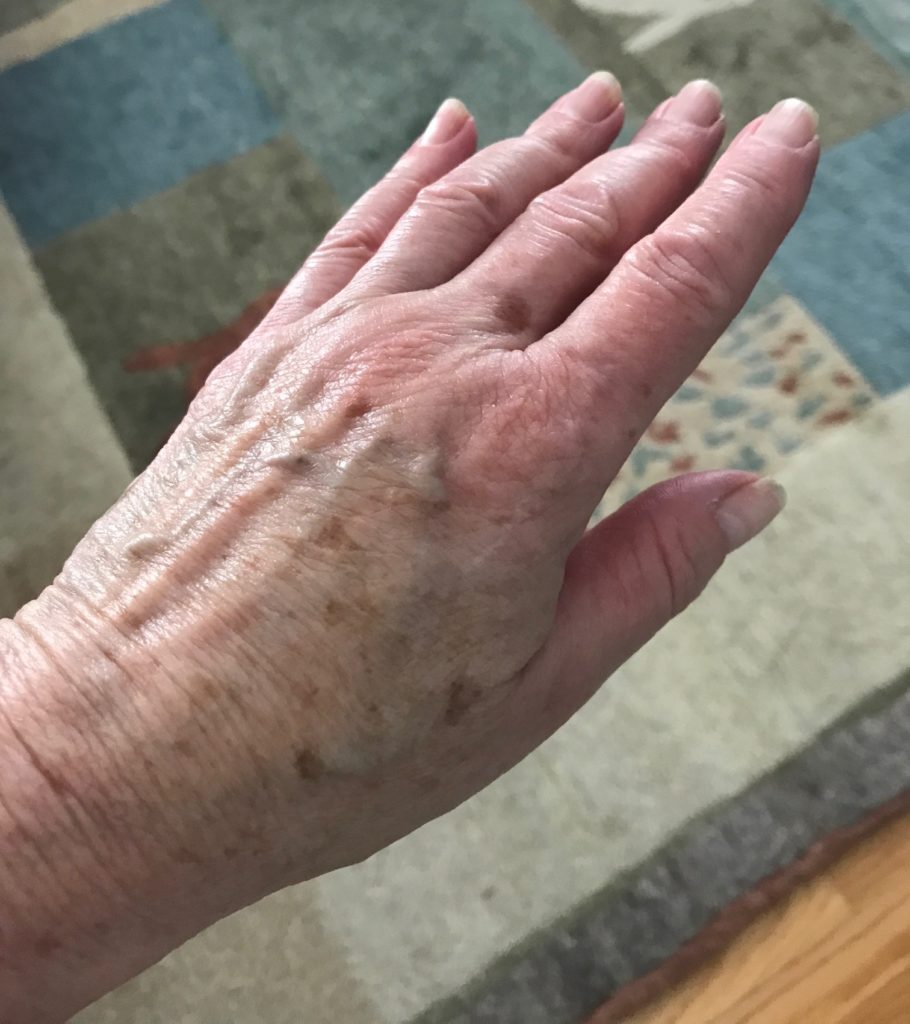 my hand after using LDC Advanced Plumping Hand Cream for 3 weeks, neversaydiebeauty.com